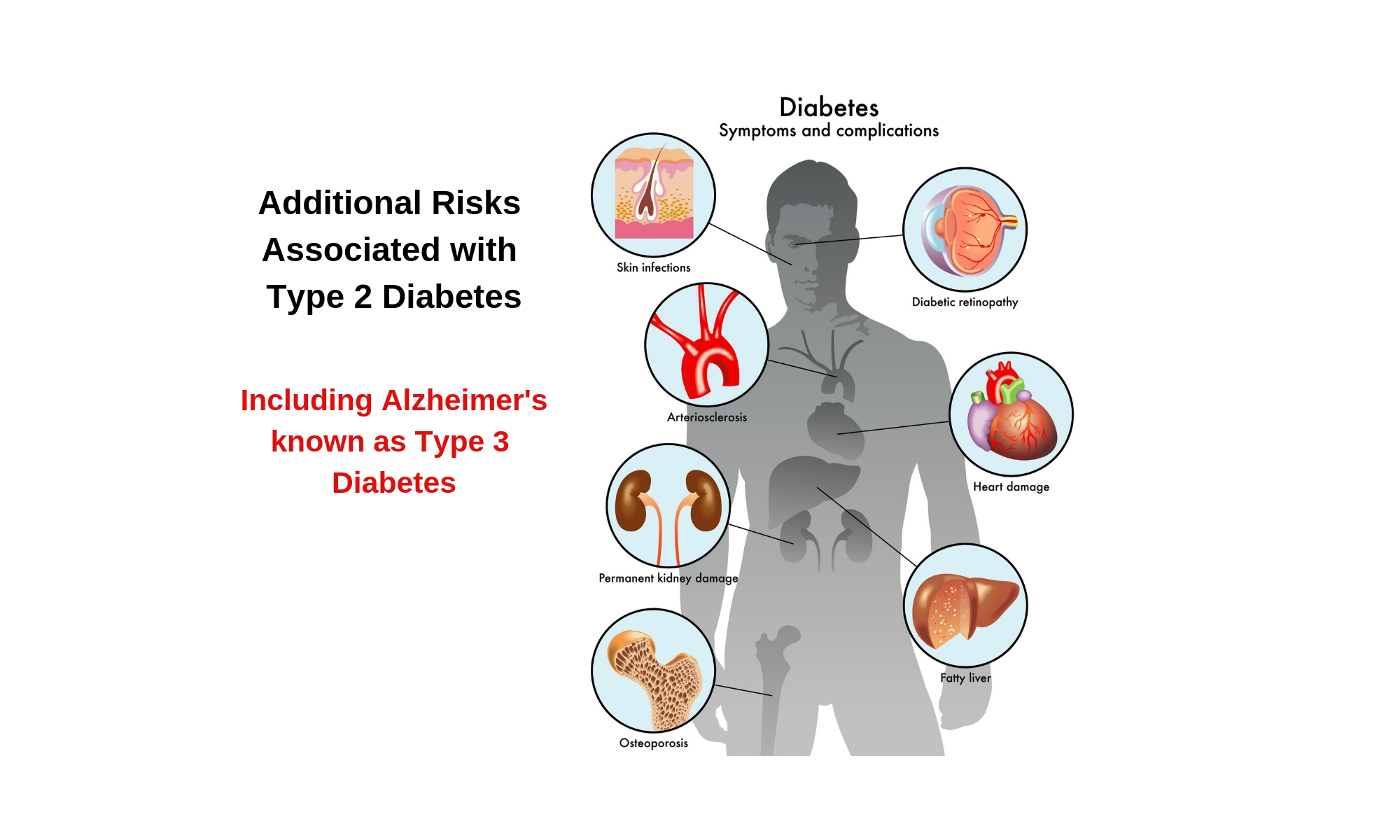 Additional risk associated with Type 2 diabetes